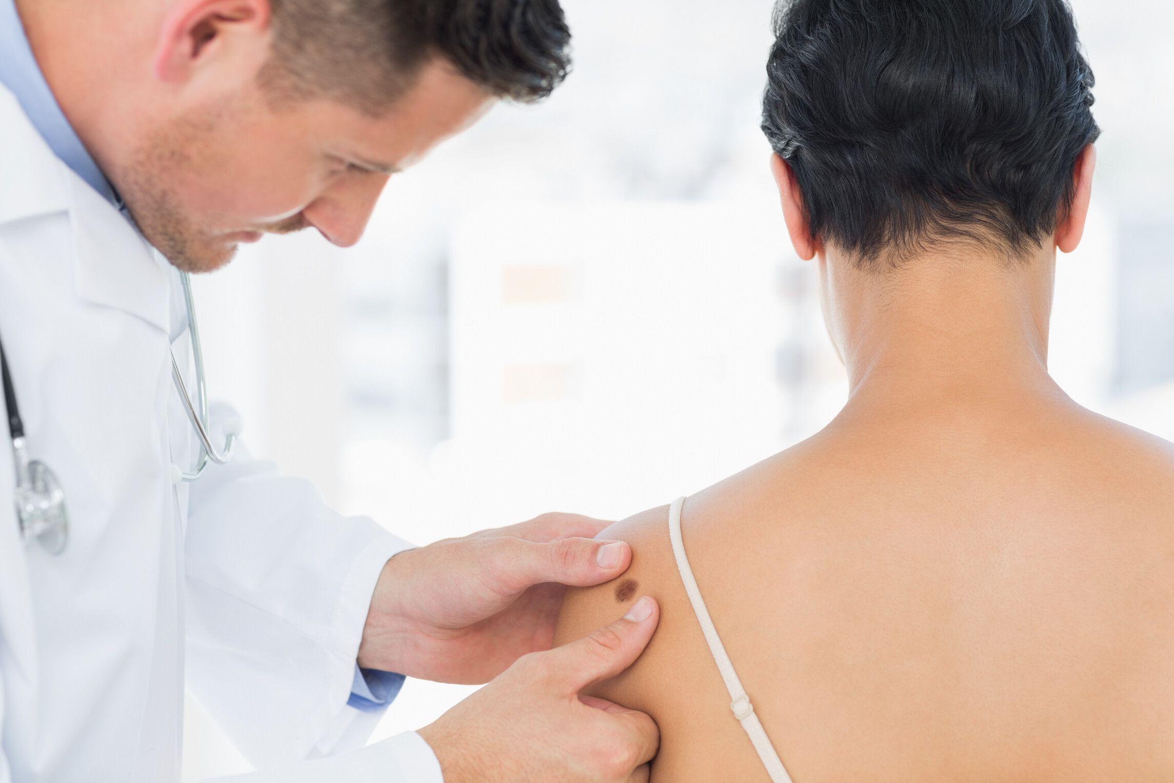 Durch das Hautkrebs-Screening ist es möglich, bereits Frühstadien von Hautkrebs zu erkennen. (Foto: AOK/hfr.)