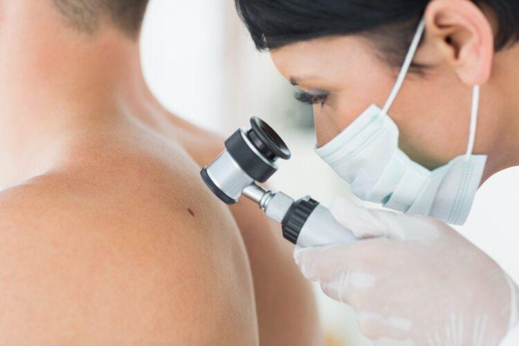 Durch das Hautkrebs-Screening ist es möglich, bereits Frühstadien von Hautkrebs zu erkennen. Doch nur wenige Menschen in Westfalen-Lippe nutzen das kostenfreie Angebot ihrer Krankenkasse. (Foto: AOK/hfr.)
